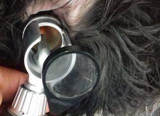 urgence-veterinaire-montpellier-epillets-oreille ©DR